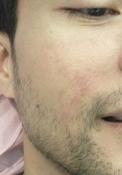 M Khan: Acne scars  after