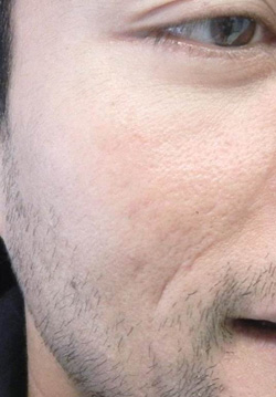 M Khan: Acne scars  before