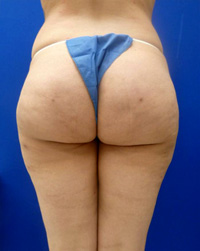 After Cellulite (Saddle Bags) Surgery