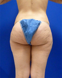 Before Cellulite (Saddle Bags) Surgery