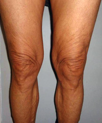 After Knee Contouring
