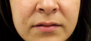 Before Lip-Augmentation-Surgery
