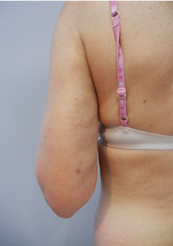M Khan: Post-Liposuction Defects: after