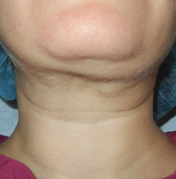 M Khan: Post-neck lift defects: before