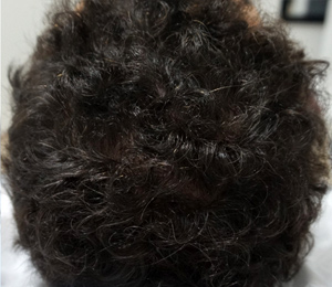 M Khan: Hair Loss Treatment