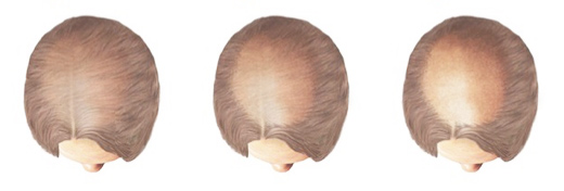 M Khan: Female Hair Loss Treatment