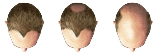 M Khan: Male Hair Loss Treatment