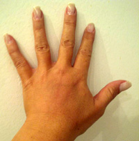 After Hand Rejuvenation