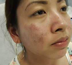M Khan: Lupus Scarring before