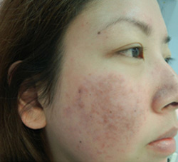 M Khan: Lupus Scarring after