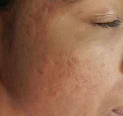 M Khan: Acne scars: after